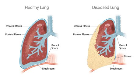 Illustrated image of healthy and diseased lung